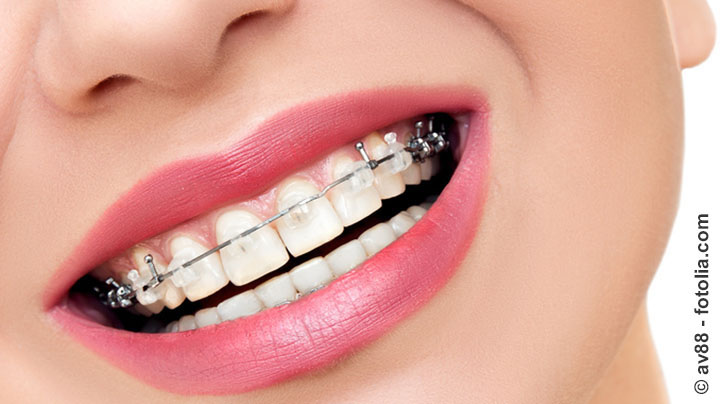Krankheitskosten – Zumutbare Belastung bleibt bestehen auch für Zahnspangen
